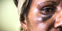 PNG woman with bruised eye